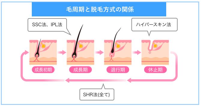 毛周期と脱毛法の関係