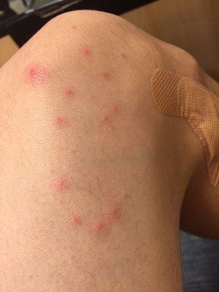 カミソリによる炎症
