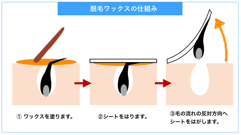 脱毛ワックスの仕組み