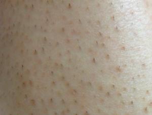 毛穴の炎症