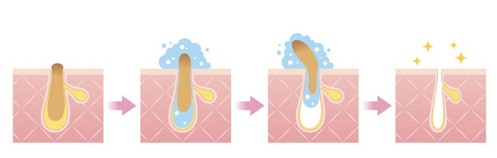 毛穴を開くと皮脂がとれやすくなる仕組み