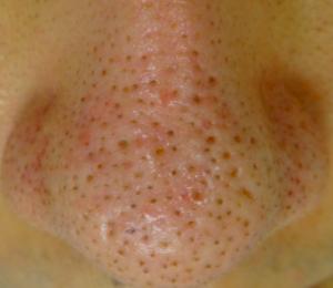 いちご鼻の写真