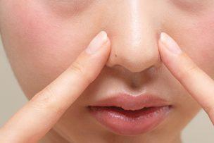 鼻 ニキビ跡