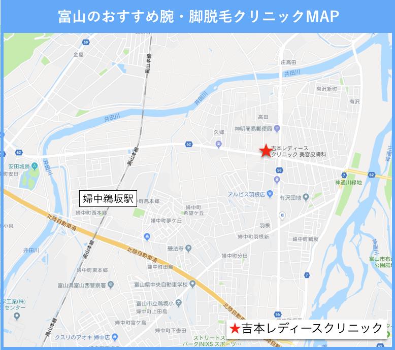 富山の腕・脚脱毛ができるクリニックの地図