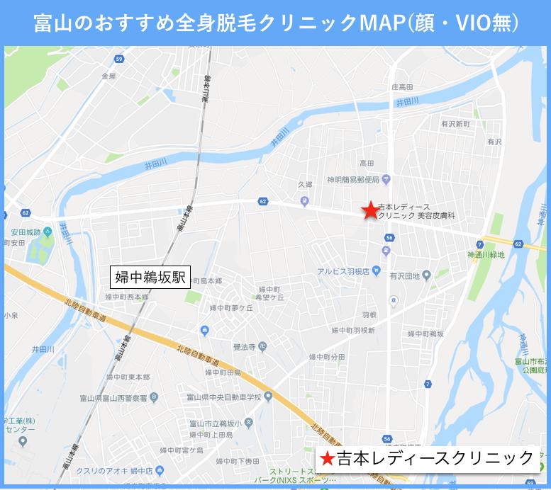 富山のおすすめ全身脱毛(顔・VIO無)のクリニックの地図