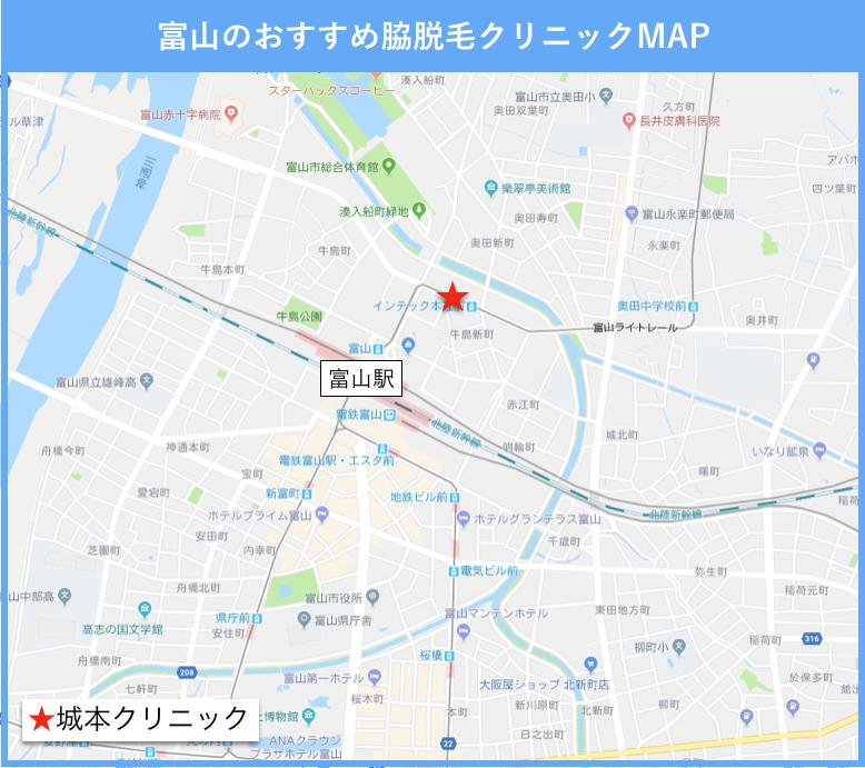 富山の脇脱毛のおすすめクリニックの地図