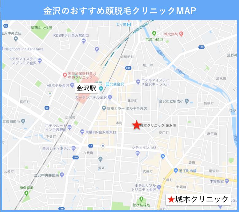 金沢の顔脱毛のおすすめクリニックの地図