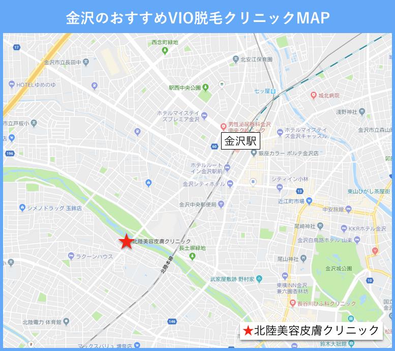 金沢のVIO脱毛のおすすめクリニックの地図