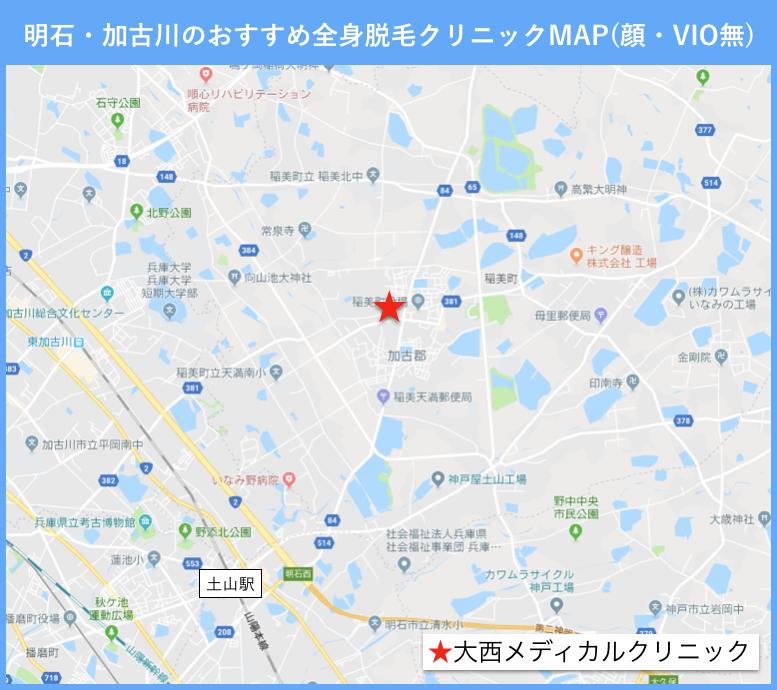 明石・加古川の全身脱毛のおすすめクリニックの地図