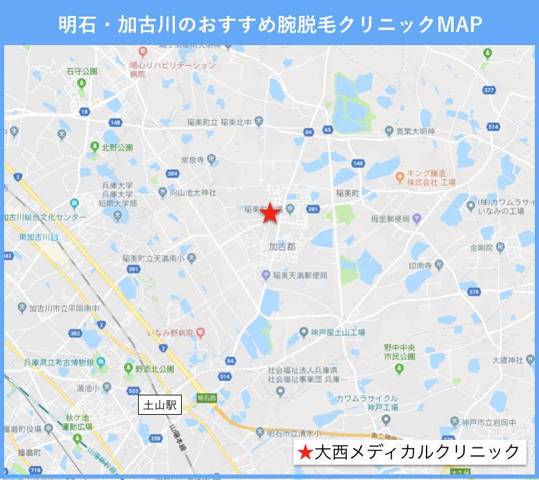 明石・加古川の腕脱毛のおすすめクリニックの地図