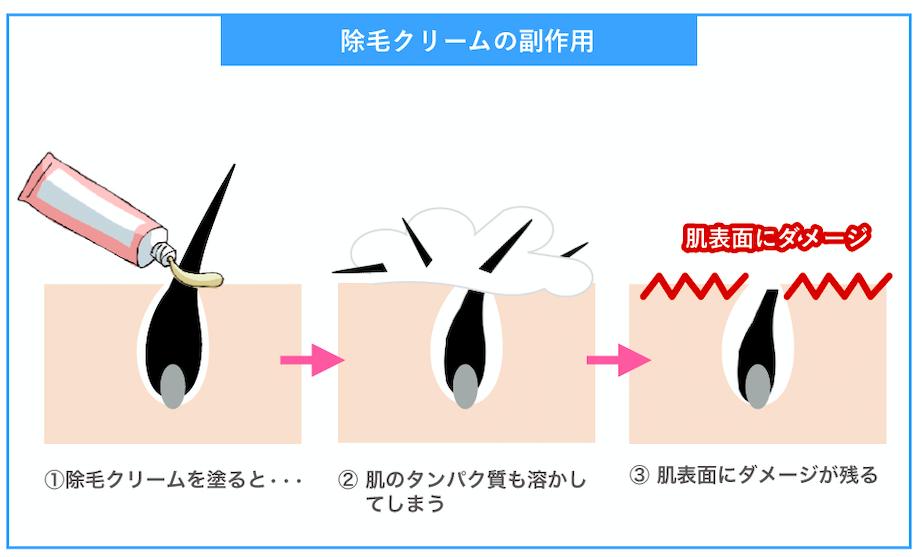除毛クリームの副作用