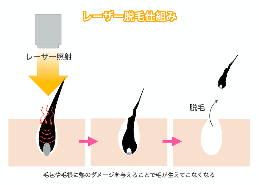 レーザー脱毛の仕組み