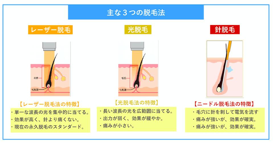 レーザーと光と針脱毛の比較