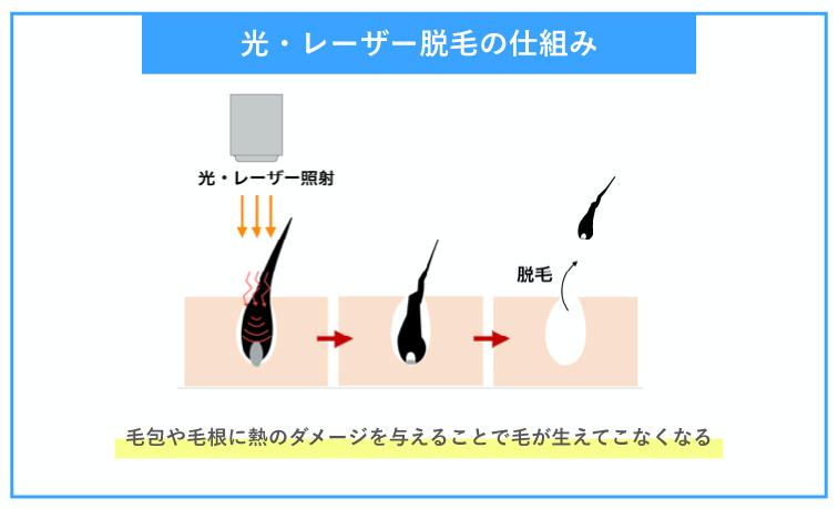 光とレーザー脱毛の仕組み